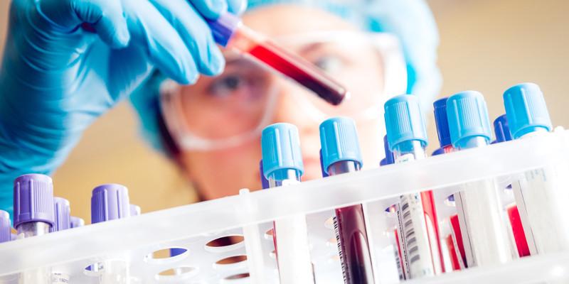 Blut Drogentest im Labor
