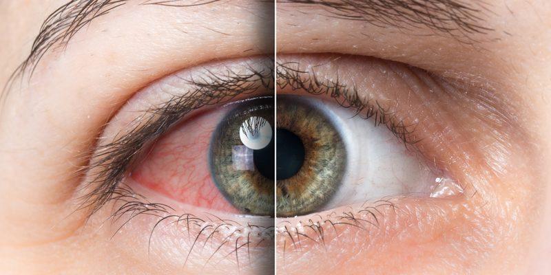 Der Grund Für Rote Augen Nach Dem Kiffen & Wie Man Abhilfe