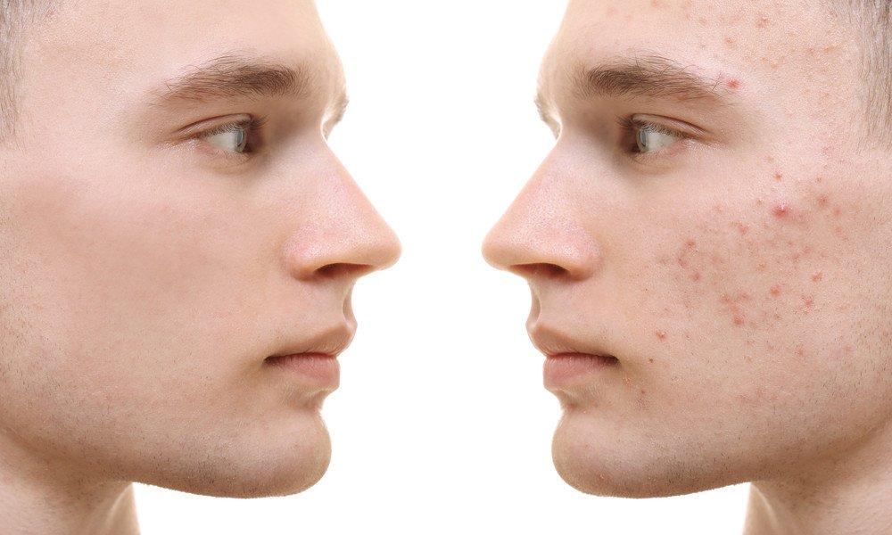 CBD gegen Akne
