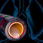 Popcorn Lunge – Was Hat Es Damit Auf Sich?