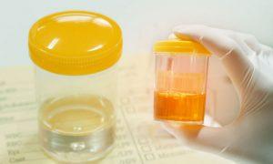 Urin im Labor wird auf drogen getestet